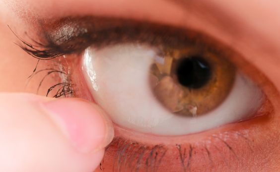 Small Changes to Protect Your Eyes from Dryness - http://nifyhealth.com/small-changes-to-protect-your-eyes-from-dryness/