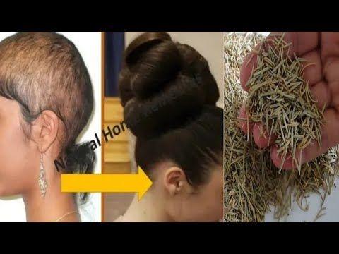 ضعيها في الشامبو لن يتوقف شعرك عن النمو بغزارة و لن يتساقط بعد اليوم ينبت الفراغات و يحارب الصلع Youtube In 2021 Healty Hair Grow Hair Beige Hair Color
