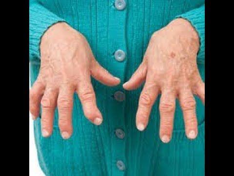 Youtube Arthritis Causes Rheumatoid Arthritis Rheumatoid Arthritis Treatment