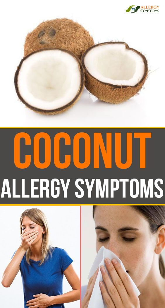 Coconut Coconut Allergy Allergy Symptoms Allergies