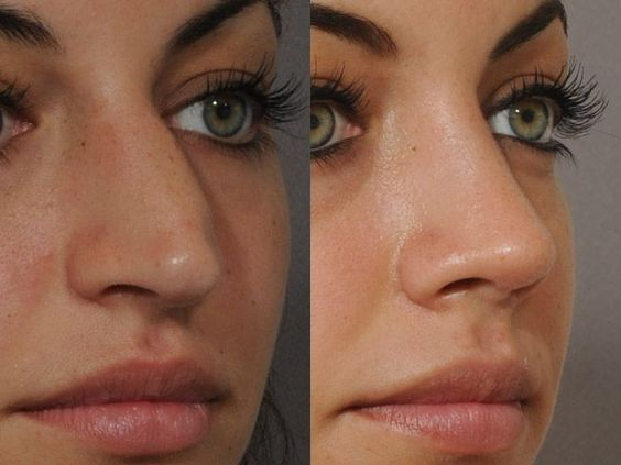 Nose plastic surgery