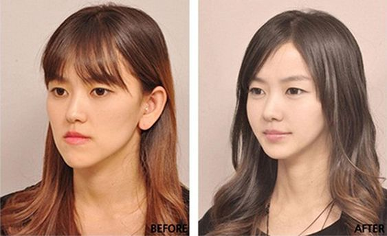 Korean face plastic surgery – chin and nose – befo…