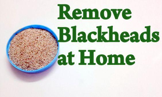 Remove Blackheads at Home