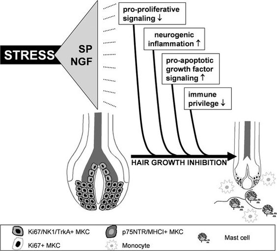 스트레스는 탈모의 중요한 원인이 됩니다. Probing the effects of stress mediators on the human hair follicle : Substance P holds central position