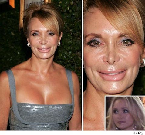 Celebrity Plastic Surgeries Gone Wrong || Before & After ...