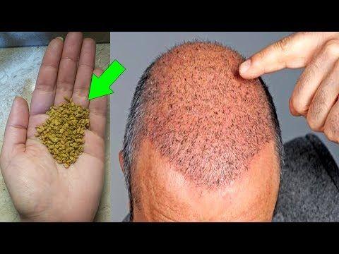 ضعيها على أماكن الصلع سينمو الشعر فيها وتختفي الفراغات في 10 ايام Youtube Beauty Recipes Hair Beauty Skin Care Routine Hair Care Oils