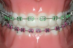 how to put on rubber bands on braces