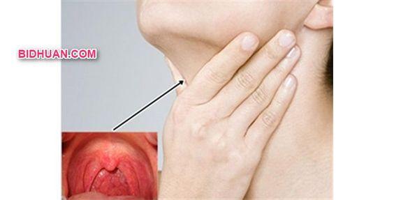 Varian Obat Sariawan di Tenggorokan yang Ampuh dan Manjur - Baca artikelnya http://bidhuan.com/metode-pengobatan/42657/varian-obat-sariawan-di-tenggorokan-yang-ampuh-dan-manjur/