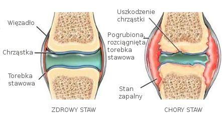 Rys. 1 Artretyzm, zapalenie stawów