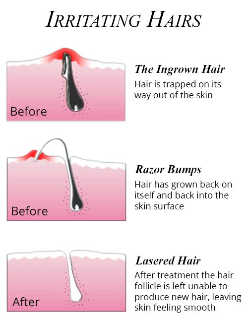 Image Gallery ingrown hair diagram