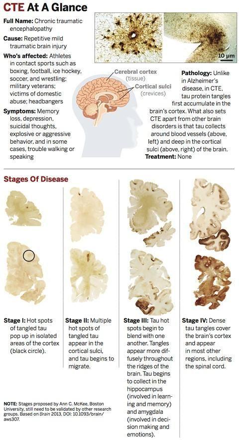 Sports Injuries Explained Traumatic Brain Injury Cte Brain