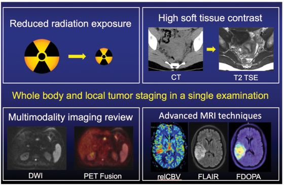 Pet Mri Faces Challenges On Road To Wider Use Pet Ct Nuclear Medicine Mri