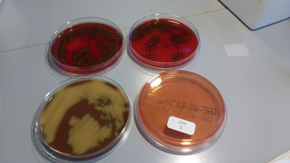 Green alpha hemolytic streptococcus(possibly s.pneumoniae) on blood plates(aerobic&anaerobic). Choc plate looks yellowish. No growth on macconkey.