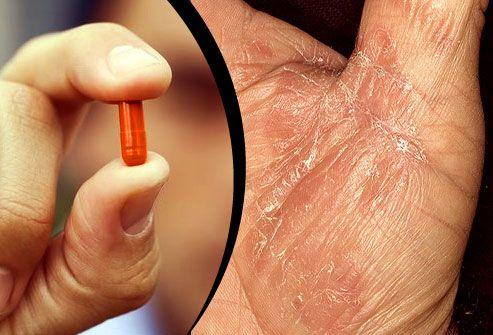 prednisone for arthritis flare up
