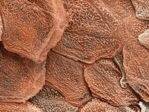 epidermis (SEM) (human skin surface)