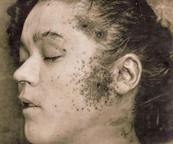 Aaliyah Dead Body Photo | Aaliyah burned badly | Aaliyah ...