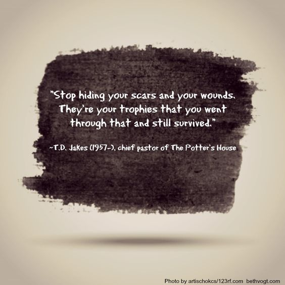 T D Jakes Quotes: Scars And Wounds Quote -- T.D. Jakes