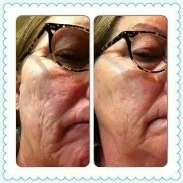 Skin is so much smoother! plove.myrandf.com