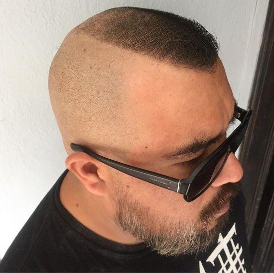 15 Trending Hairstyles For Balding Men Top Front Sides In 2021 Hairstyles For Balding Crown Balding Mens Hairstyles Haircuts For Balding Men