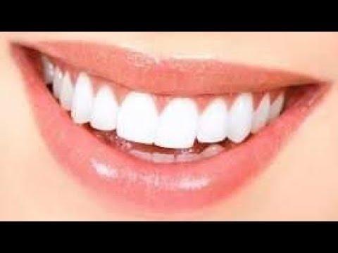 Pin On وصفات مجربة للأسنان