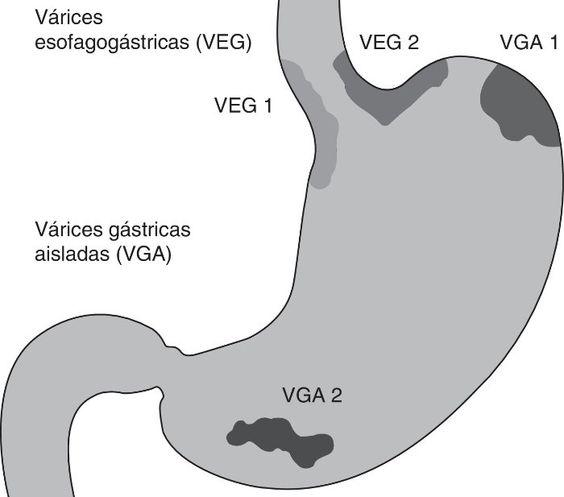 Por qué se producen las varices esofágicas