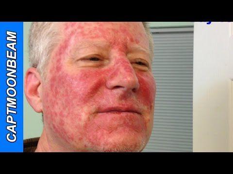 Pin On Skin Cancer