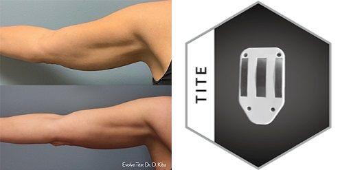 The Ultimate In Skin Tightening In 2020 Tighten Loose Skin Skin Tightening Loose Skin