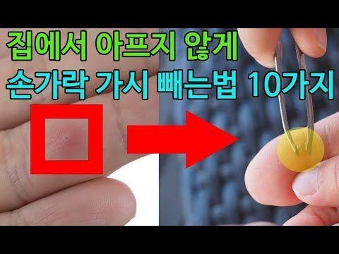 집에서 아프지 않게 손가락 가시 빼는법 10가지 Youtube 손가락 아이디어