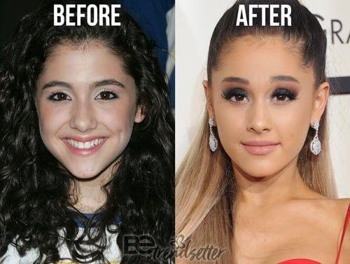 Veronica macias vor und nach dem Abnehmen