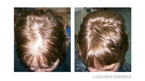 Hair Regrowth Spray. Before and After Testimonial