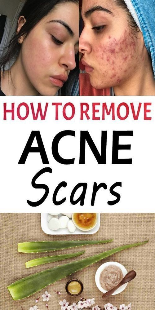 Pin On Skin Care Routine For Acne