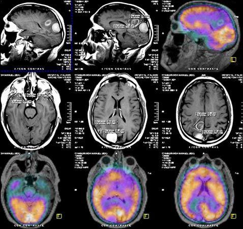 Enfermedades Neurológicas- Epilepsia: Proyecto de investigacionTema: Enfermedades neurol...