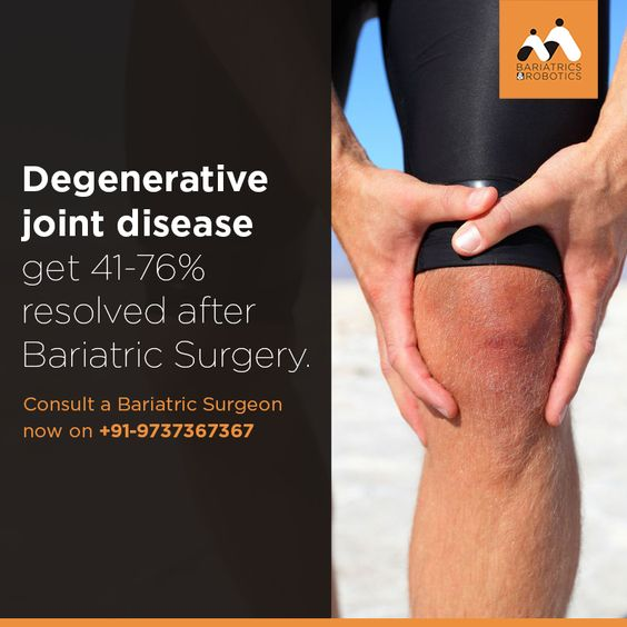 Joint Disease resolved after Bariatric Surgery