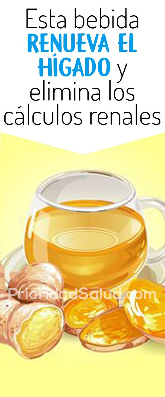 Elimina Calculos Renales Litiasis Piedras Del Riñon Health And Wellness Healthy Life Natural Cures