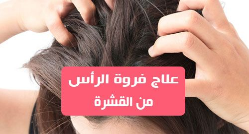 علاج فروة الراس من القشرة يمكن أن تحدث القشرة عند اي شخص وفي أي عمر وذلكبسبب جفاف الجلد والبشرة الدهنية المتهيجة ونمو البكتير Beauty Skin Skin English Grammar