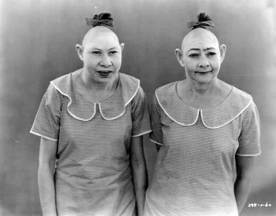 "Pip and Zip (Elvira and Jenny Lee Snow) Sisters from Georgia, they suffered from microcephaly, a disorder that causes the circumference of the head to be abnormally small. In the language of the side show, they were ""pinheads."" Jenny Lee was 12 years younger, but had the intelligence of a 18 month old child. Elvira was about a five year old equivalent.:"