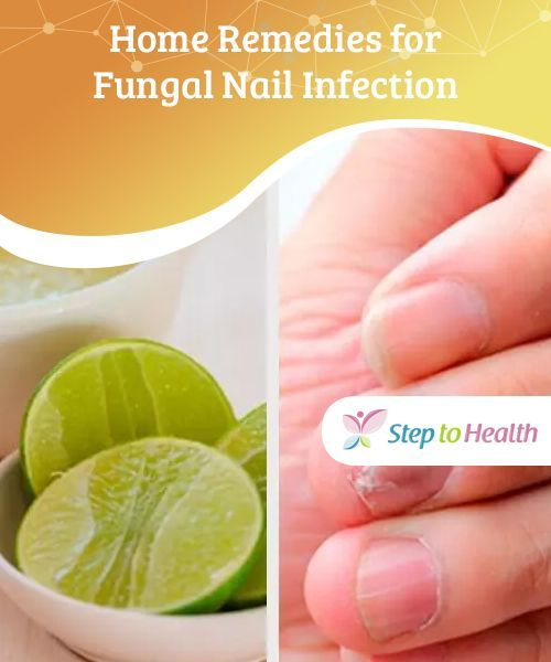 Home Remedies For Fungal Nail Infection Toenail Fungus Home