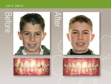 Before and After: Do you have crowded teeth? There are two ...