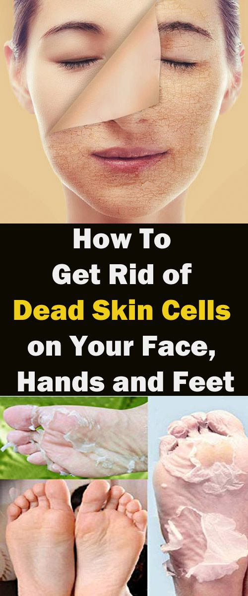 How To Get Rid Of Dead Skin On Chin