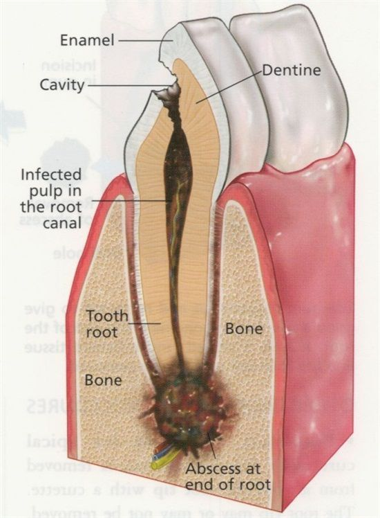Dentaltown - The Anatomy of a Dental Abscess. This is what happens when you let a cavity go untreated.