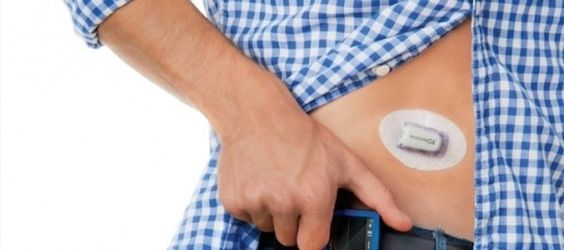 Alphabet et DexCom ensemble contre le diabète