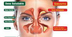 Sinusitis: síntomas y tratamientos para que te sientas mejor