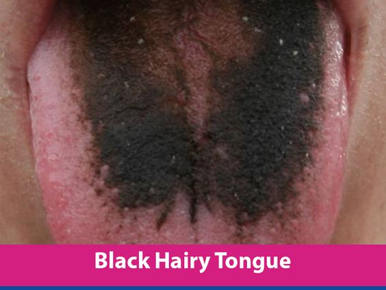 Peroxide causes hairy tongue