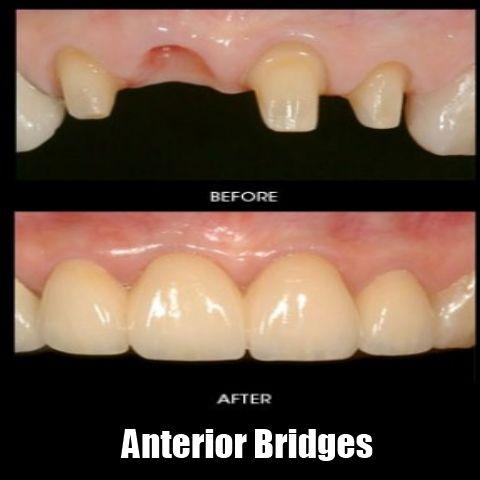 Anterior Bridge Preparation Dentist Teethbleaching LADentist