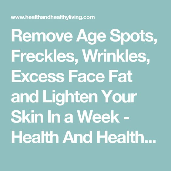 Remove Age Spots, Freckles, Wrinkles, Excess Face Fat and Lighten Your Skin In a Week - Health And Healthy Living