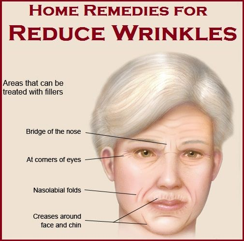 Home Remedies for Wrinkles | Beauty | Pinterest | Be ...