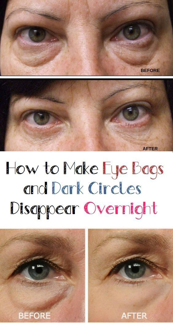 How To Make Eye Bags And Dark Circles Disappear Overnight Eye