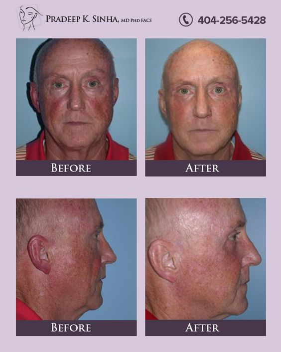 Mid face lift is a great way to lift and restore the middle of the face