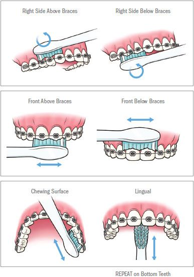how to brush your teeth with braces - Google Search: