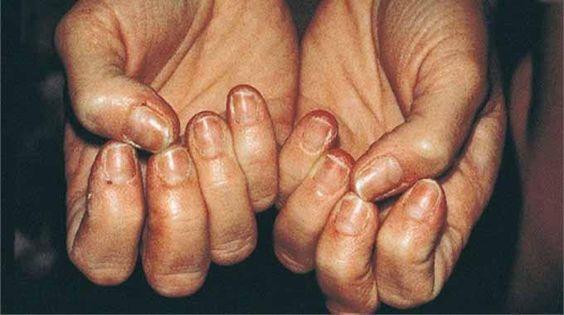 Vos ongles se cassent ou se dédoublent ? C'est signe d'un manque de vitamines ou de minéraux.  Découvrez l'astuce ici : http://www.comment-economiser.fr/ast-pour-durcir-des-ongles-mous.html